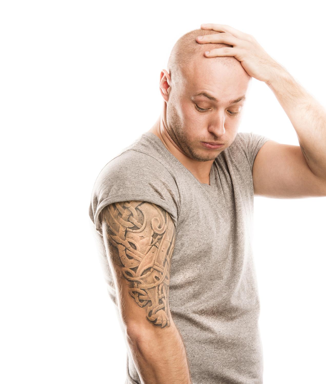 rimozione dei tatuaggi